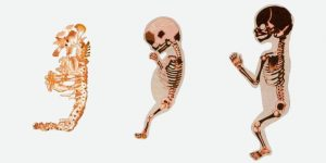Развитие скелета